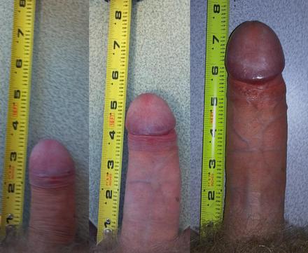 Como Homens Estao Conseguindo Aumentar o Pênis