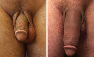 É possível aumentar o pênis de forma natural ?